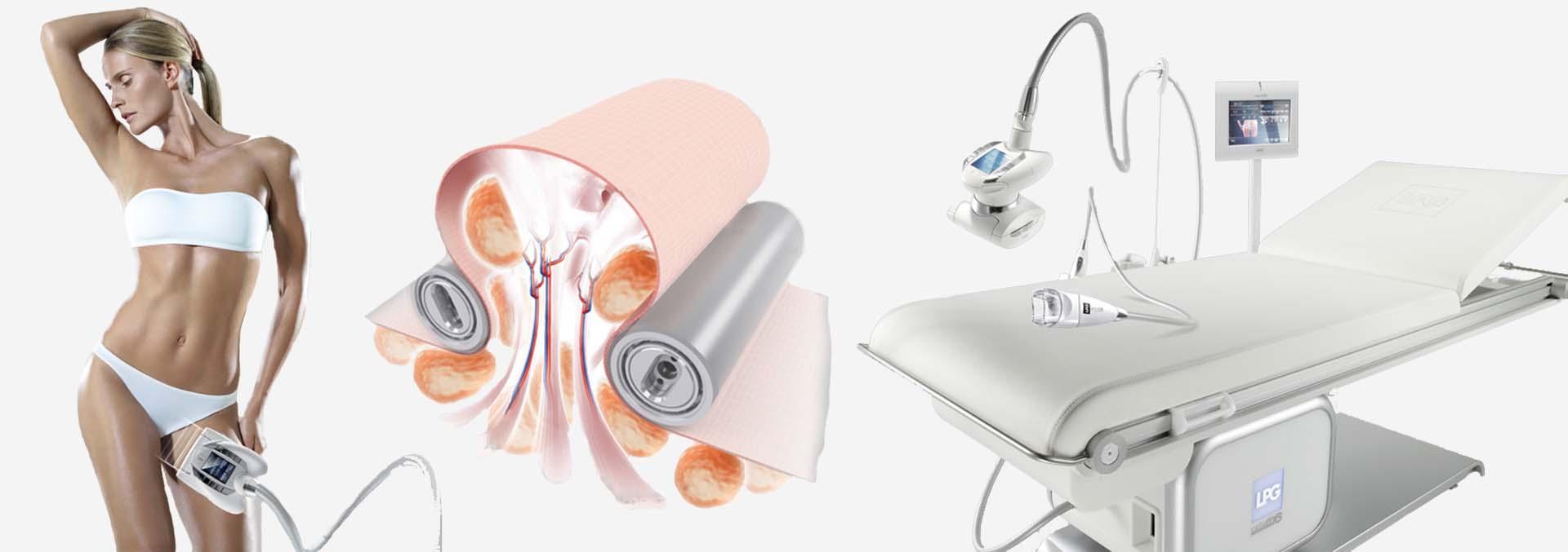 endermologia zabiegi odchudzające i na cellulit
