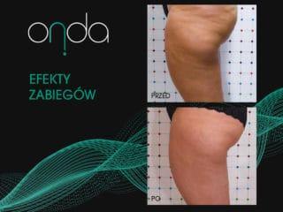 efekty ONDA odchudzanie i redukcja cellulitu