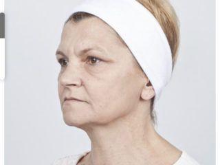 efekty Thermolifting Zaffiro Klinika Beauty Szczecin